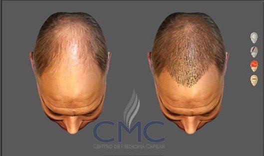 resultado do implante capilar