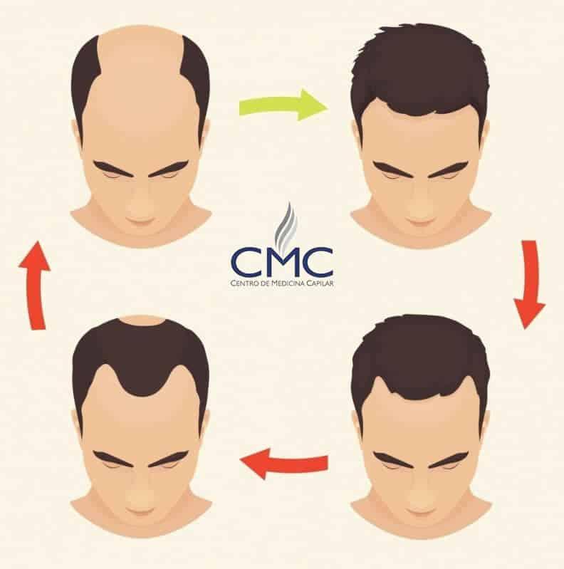 implante capilar antes e depois